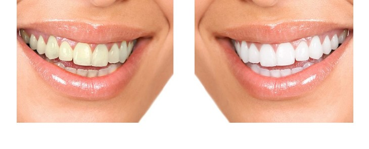 FUN but REAL - White teeth are nicer than the light grey – the same applies to terminal blocks
